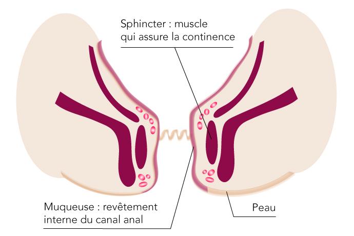 hemrroïde-hôpital J Ducuing chirurgie proctologie toulouse