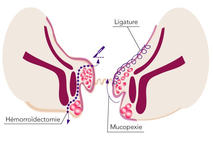 traitement mixte chirurgie proctologie toulouse